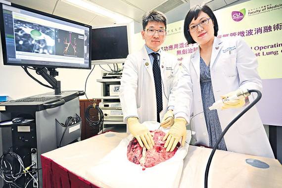 """香港中文大學(中大)醫學院胸腔外科團隊成功應用混合手術室""""經氣管微波消融術"""",令肺癌治療達至""""無創"""",成為亞太區首例。(圖源:互聯網)"""