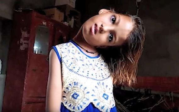 巴基斯坦一名11歲的女童,整個頸部呈現90度扭曲。(圖源:翻攝自YouTube)