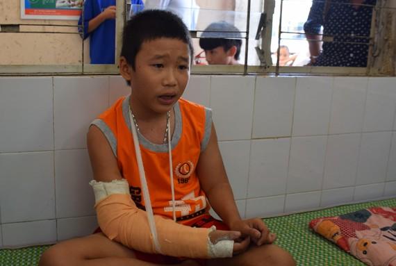 Cháu Linh được chuyển ra Bệnh viện Đa khoa Đà Nẵng điều trị vì nghi chấn động não