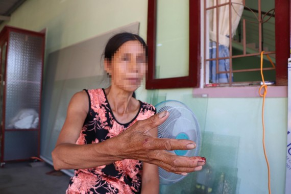 Bà Nguyễn Thị M. (cô ruột của chị A.) kể lại sự việc