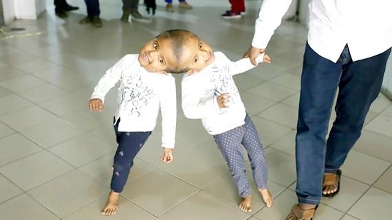 Bangladesh: Tách thành công cặp song sinh dính nhau phần đầu