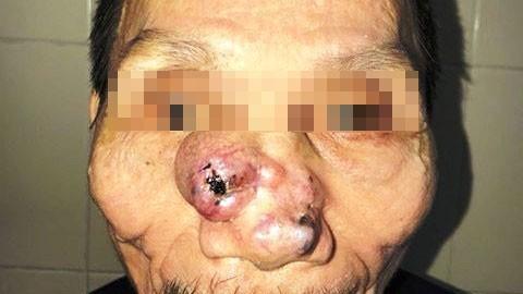 Khối u lớn trên mũi gây biến dạng khuôn mặt của bệnh nhân Q.