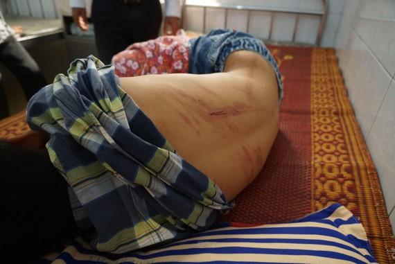 Em Nguyễn H. L. với nhiều vết thương đang nằm điều trị tại bệnh viện