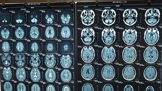 Hình ảnh chẩn đoán nhồi máu não của người đàn ông nước ngoài