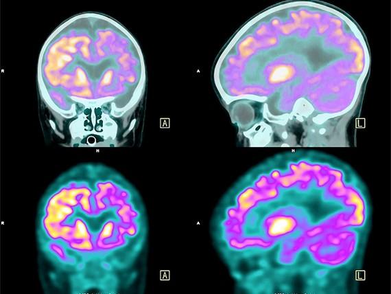 Xét nghiệm máu để chẩn đoán suy giảm trí nhớ