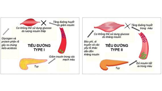 Căn nguyên của bệnh tiểu đường: Mấu chốt nằm ở tuyến tụy