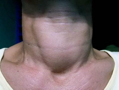 Thiếu i-ốt có thể gây bướu cổ