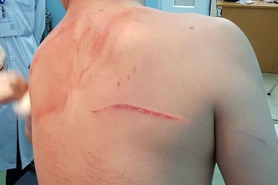 Vết thương trên người bác sĩ Chiêm Quốc Thái. Ảnh: P.A