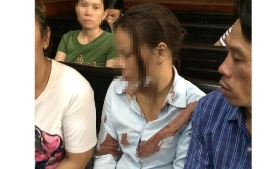 Chị Liền bị đánh chảy nhiều máu, được đưa đi cấp cứu và quay trở lại dự phiên tòa. Ảnh: MAI HOA