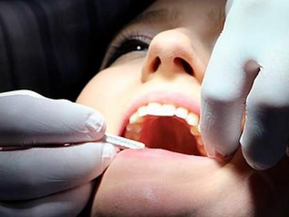 Thực phẩm chức năng ngăn ngừa bệnh răng miệng