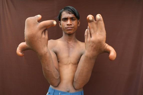 """Bàn tay """"khủng"""" của cậu bé Tarik ở bang Uttar Pradesh (Ấn Độ). Ảnh: Rareshot / Barcroft Images"""