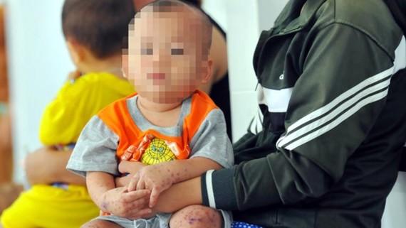 若小兒身上和口腔出現小小的紅疹,請莫掉以輕心,應立即就醫。