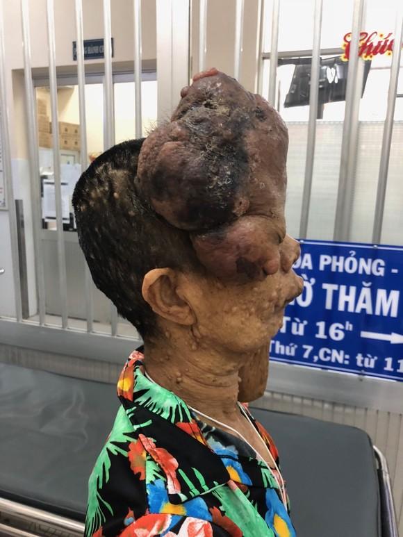 Phẫu thuật thành công khối bướu thần kinh lớn khiến khuôn mặt người phụ nữ biến dạng ảnh 1
