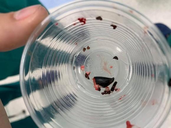 Hạt sapôchê được lấy ra trong lòng phế quản bệnh nhi