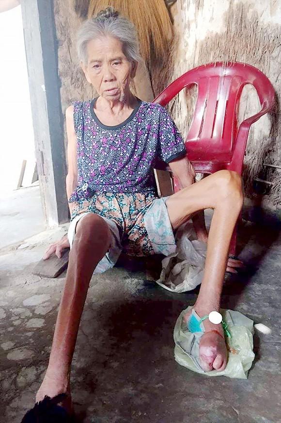 Cụ bà bị liệt chăm chồng gãy chân ảnh 1