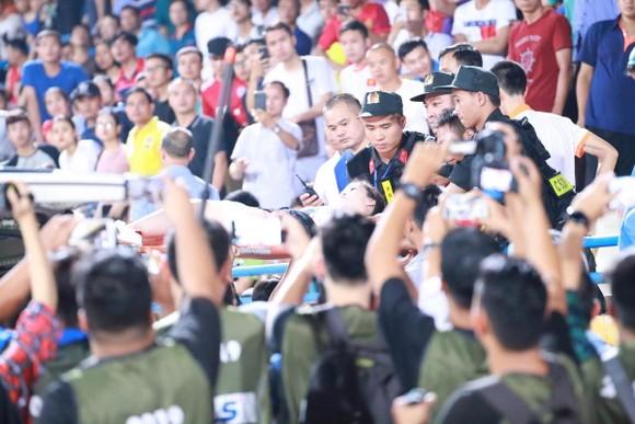 CĐV nhập viện vì dính pháo sáng: Sân Hàng Đẫy đứng trước án phạt nặng ảnh 3