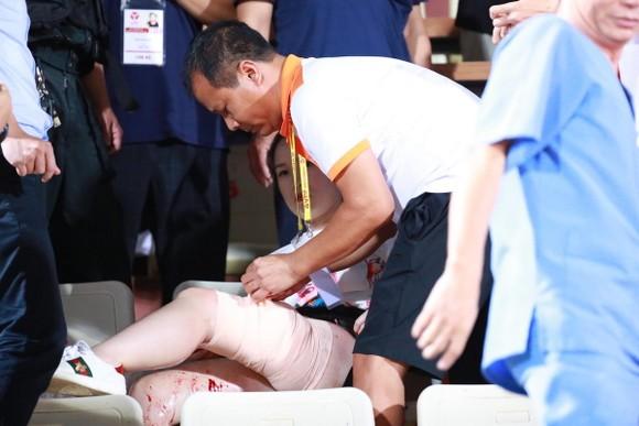 CĐV nhập viện vì dính pháo sáng: Sân Hàng Đẫy đứng trước án phạt nặng ảnh 2
