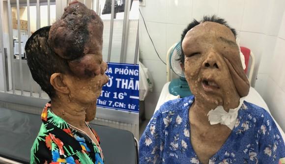 左圖起:巨型神經纖維瘤患者紅姐手術前與後。(圖源:成安)