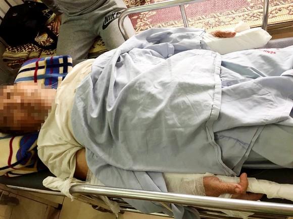 Đi thể dục buổi sáng làm chó sủa, cụ ông 83 tuổi bị đánh gãy 2 tay ảnh 2