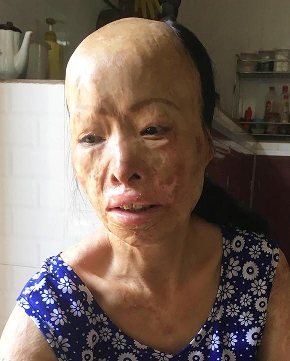 Người phụ nữ 10 năm sống trong sợ hãi ảnh 1