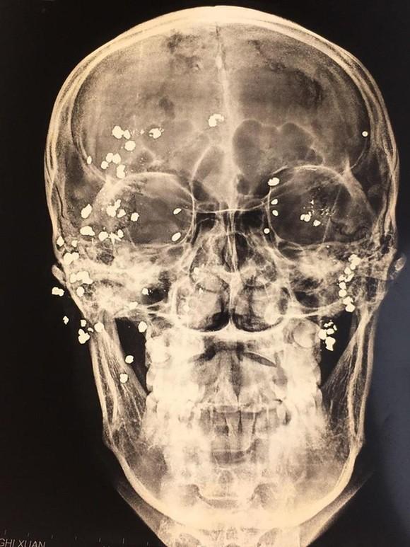 Phẫu thuật nạn nhân lấy 39 viên đạn hoa cải ảnh 1