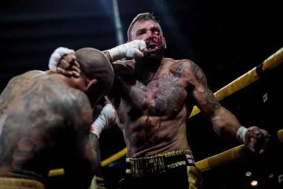 Đấu quyền không găng an toàn hơn… MMA và quyền Anh? ảnh 2