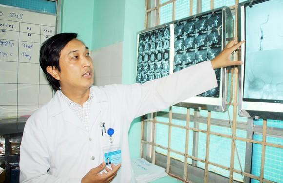 Bình Định: Cứu chữa kịp thời một bệnh nhân nhồi máu não ảnh 1